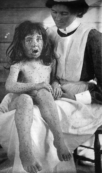 Child with smallpox, 1904